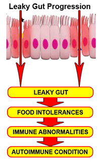 Leaky Gut Progression