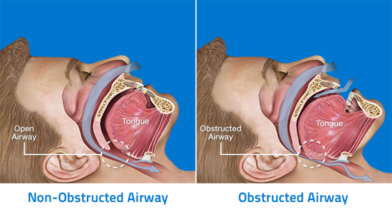 Obstructed Sleep Apnea