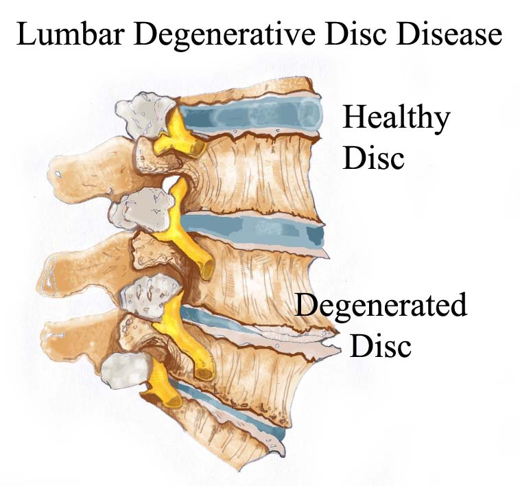 Lumbar Degenerative Disc Disease